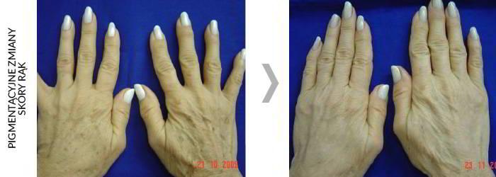 Alma DyeVL efekty zabiegów 2