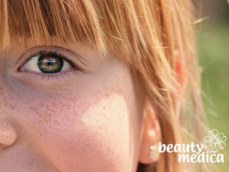 Usuwanie piegów i innych zmian pigmentacyjnych