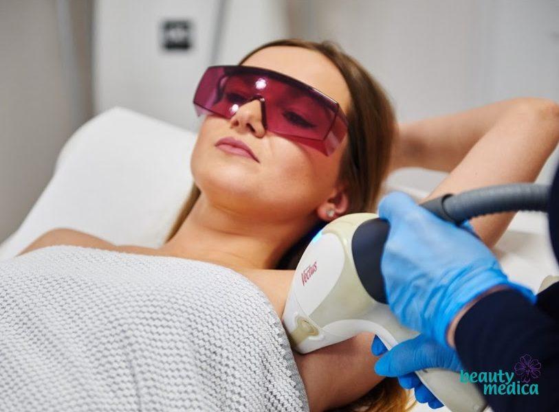Najskuteczniejsza depilacja laserowa