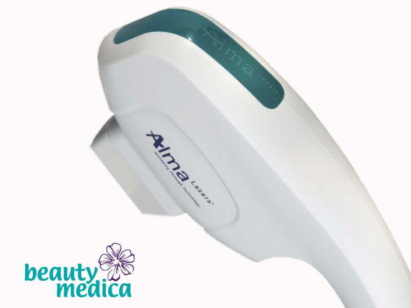 Sposób na naczynka – zabiegi laserowe ALMA DYE-VL w Beauty Medica