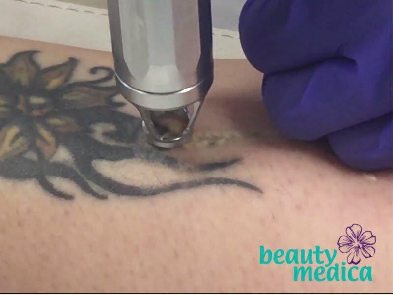 Laserowe usuwanie tatuaży.