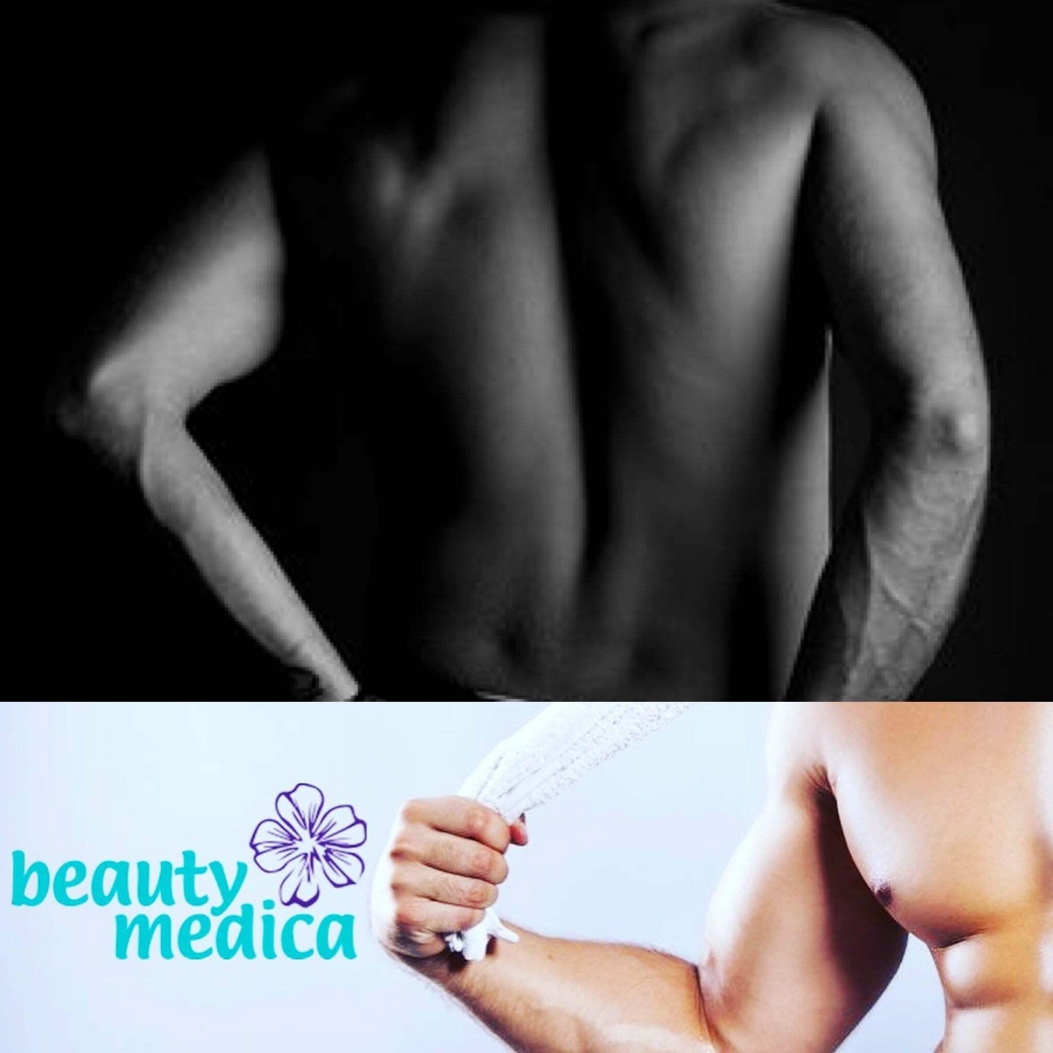 My też się epilujemy, czyli laserowa depilacja u mężczyzny.