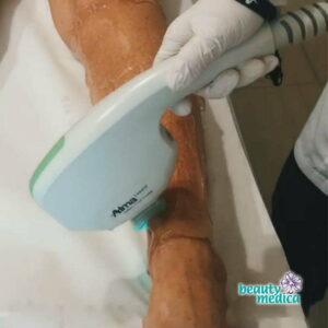 zabiegi Laser Alma Dye VL usuwanie prebarwień