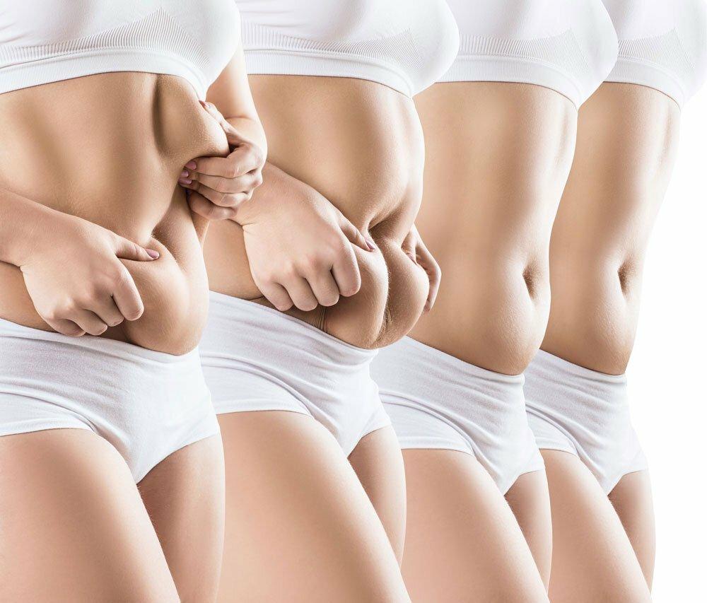 Cellulit, czyli lipodystrofia typu kobiecego.