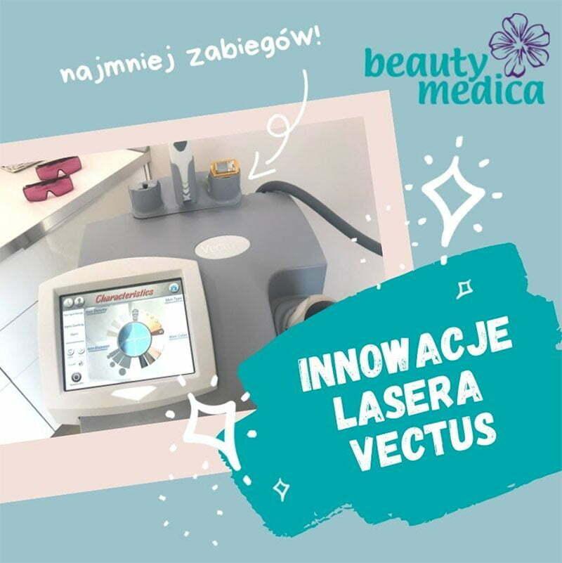 innowacje lasera vectus