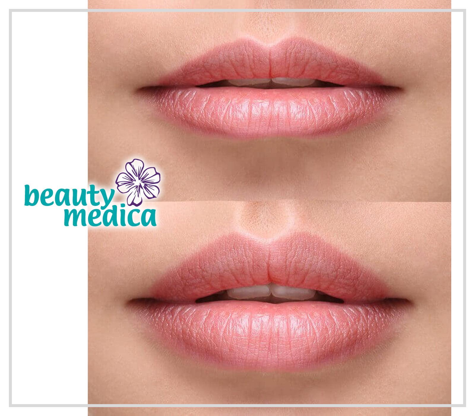 powiększanie i modelowanie ust