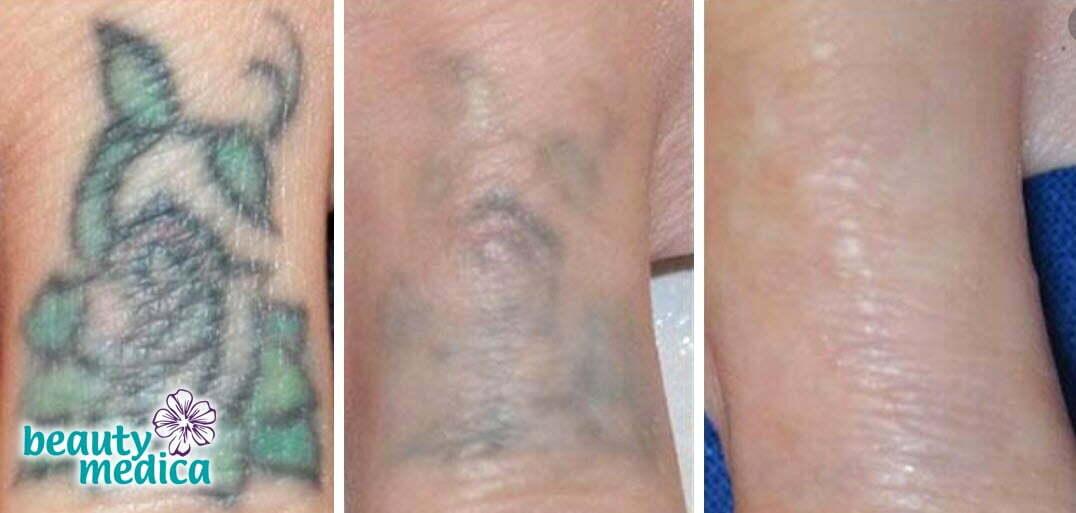 jak pozbyć się tatuażu skutecznie